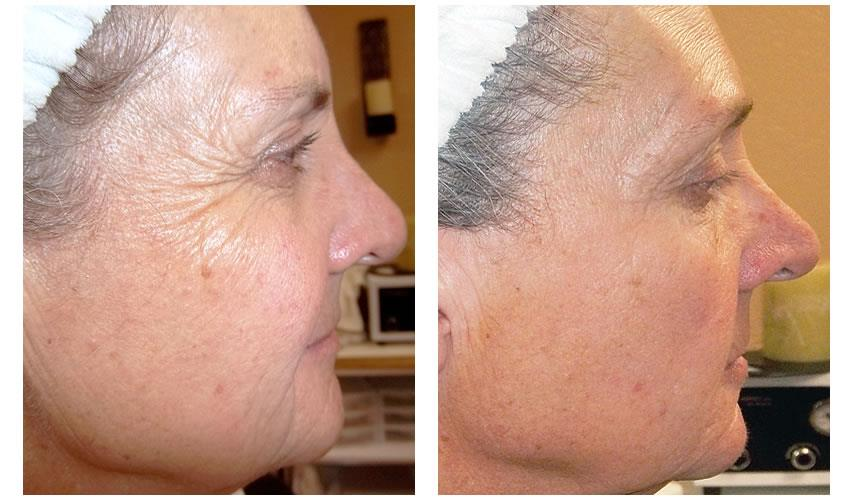 Results with Osmosis Skincare Esthetician Moncton
